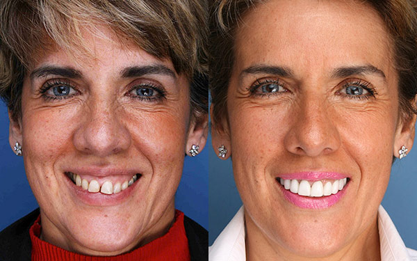 Celebrities before and after teeth whitening
